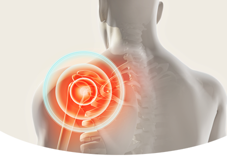 Shoulder Pain Arthritis Torn Rotator Cuff Shoulder