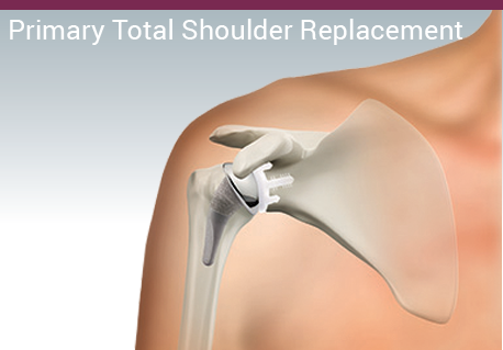 Primary Total Shoulder Replacement